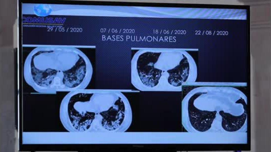 Médico expone los resultados obtenidos con el uso de Dióxido de cloro