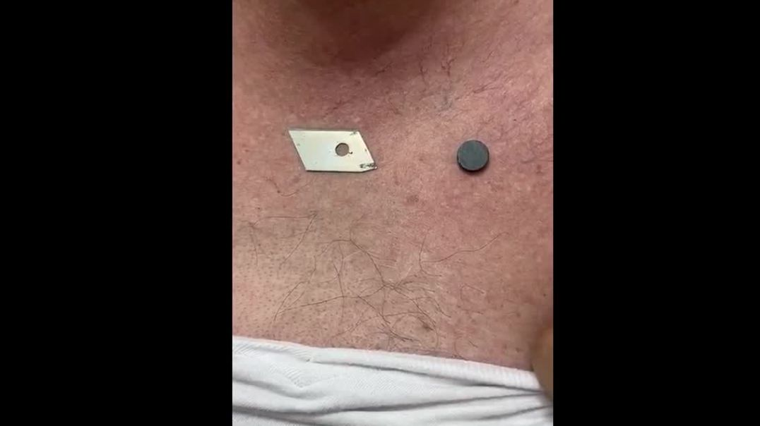 MagnetGate: Dr. Pedro Chávez documents case of patient who took Sinovac shots and became magnetic
