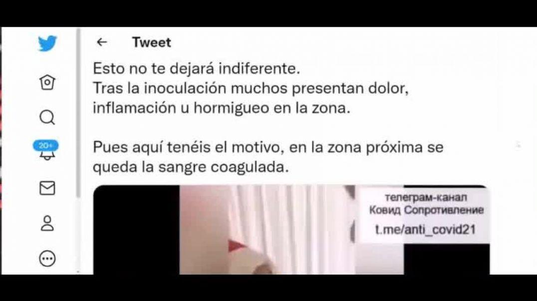 """Coagulación de la Sangre Tras """"Vacunarse"""""""